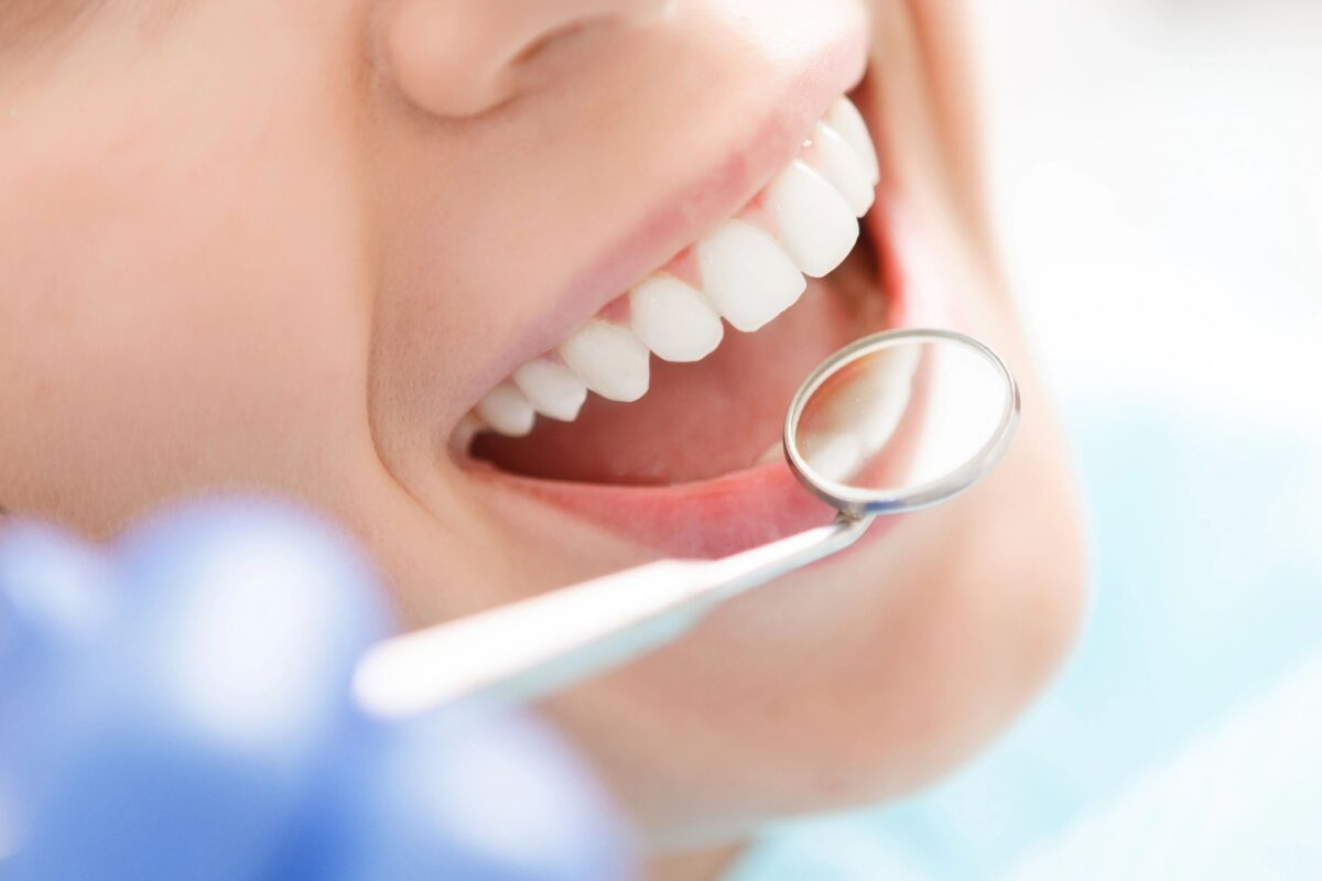 Dental Insurance Coverage - What Are the Advantages?