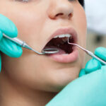 Things to Consider When Buying Cheap Dental Insurance
