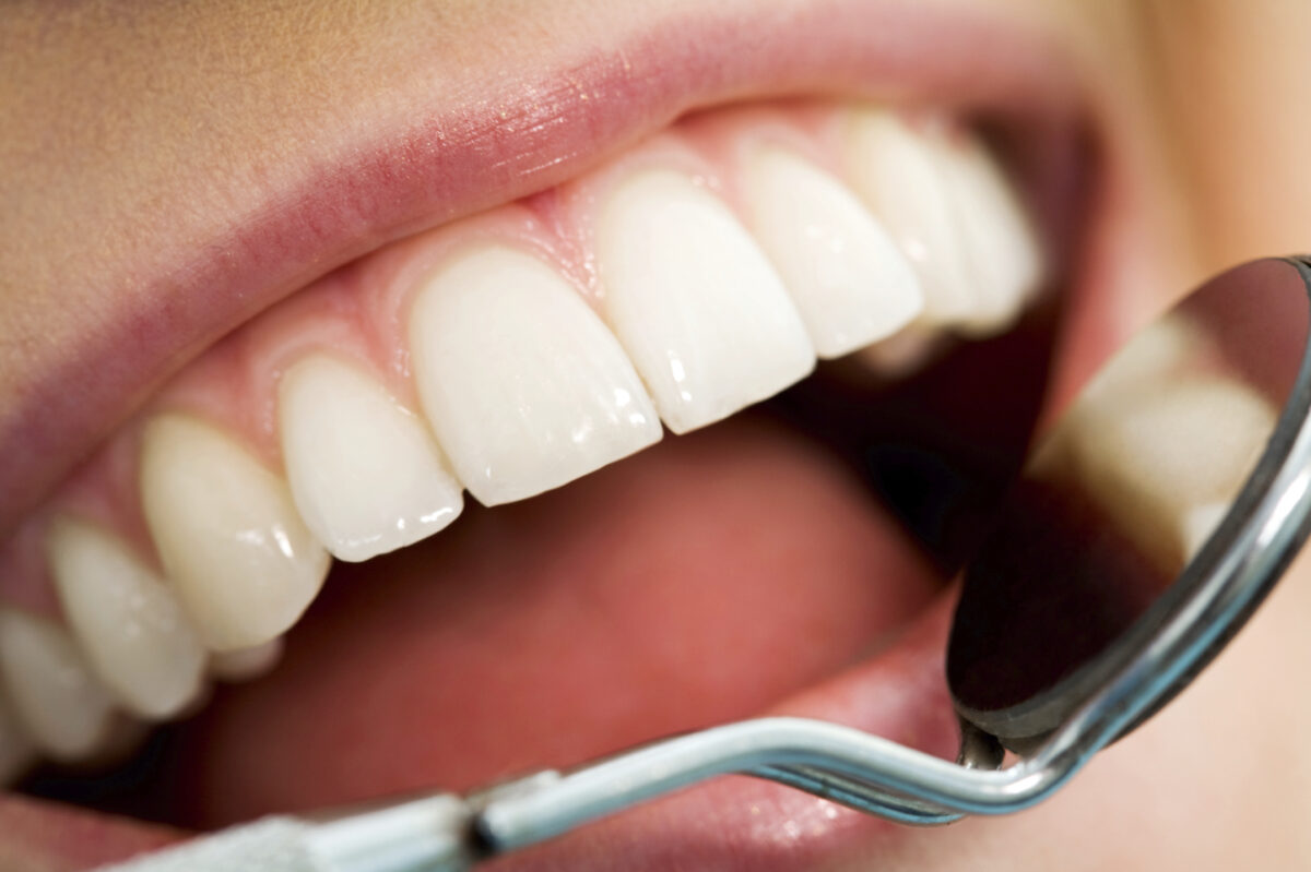 Small Business Dental Plans - How to Offer Cheap